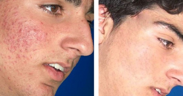 acne-scars-2-ellis-esthetics
