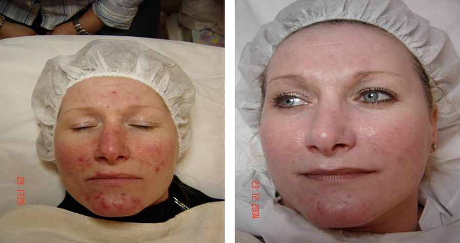 acne-scars-ellis-esthetics