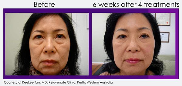 clearlift-lunchtime-facelift-before-after-ellis-esthetics
