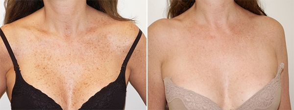 dark-spots-ipl-photofacial-chest-ellis-esthetics