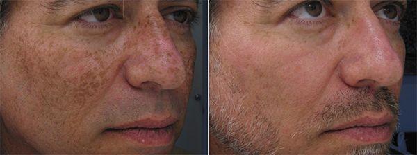 dark-spots-ipl-photofacial-face-ellis-esthetics