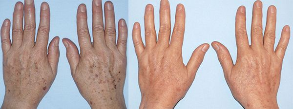 dark-spots-ipl-photofacial-hands-ellis-esthetics