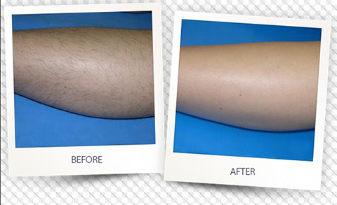 laser hair removal for your legs by Ellis Esthetics