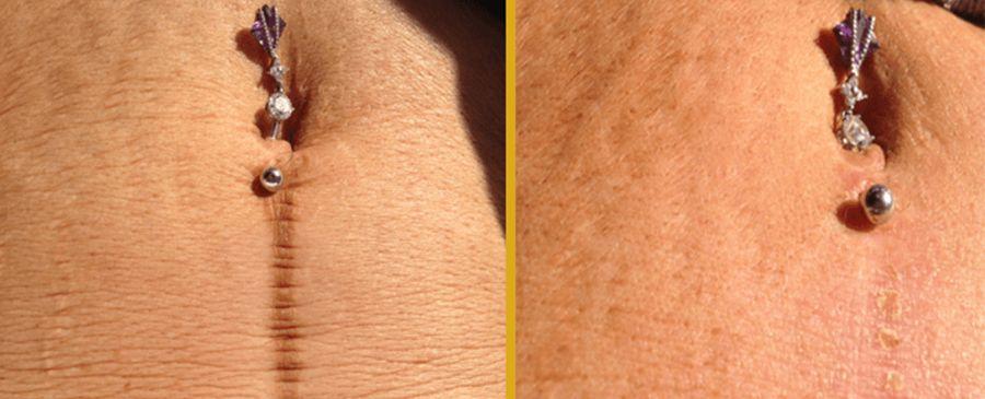 microneedling-stretch-marks-ellis-esthetics