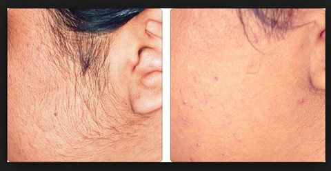 sideburns laser hair removal by Ellis Esthetics