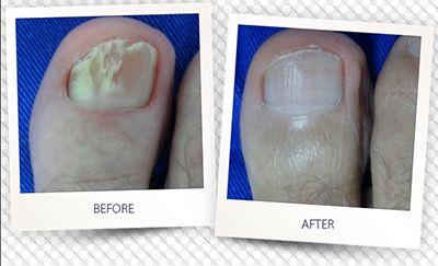 toenail-fungus-ellis-esthetics