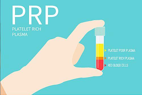 prp platelet rich plasma by ellis-esthetics